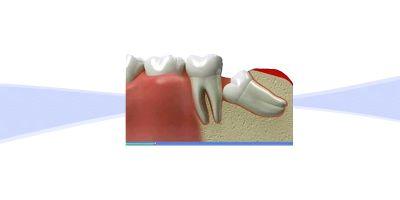 Chirurgie orală